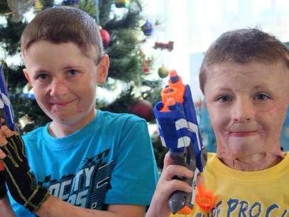 Hoje, os meninos tentam retomar a vida normal após o crime Foto: Facebook/Fletcher & Spencer's Journey to Recovery Channel 7/Today Tonight  / Reprodução