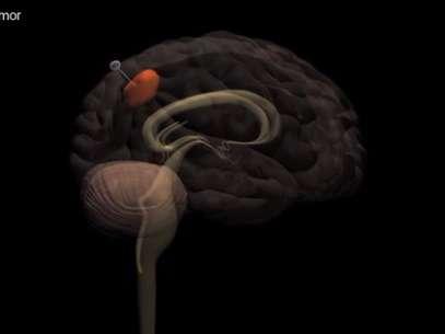 Especialistas descobrem técnica que retira células cancerígenas do cérebro Cienciatumorreproducao01