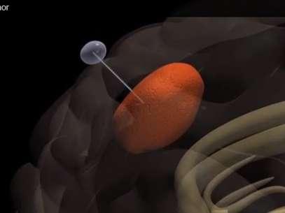 Especialistas descobrem técnica que retira células cancerígenas do cérebro Cienciatumorreproducao02