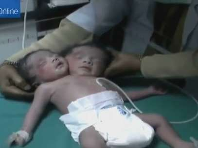 O bebê nasceu com duas cabeças, dois pescoços e duas espinhas, mas tem somente um corpo Foto: YouTube / Reprodução