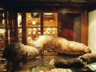 Entre as bizarrices encontradas no Mutter Museum estão crânios, dentes e até mesmo um intestino gigante Foto: Divulgação