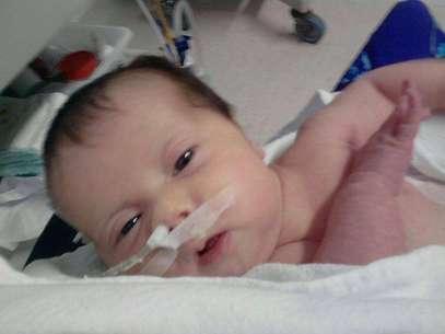 Sofia, 4 meses, precisa de uma cirurgia complexa, pois não consegue digerir alimentos Foto: Facebook / Reprodução