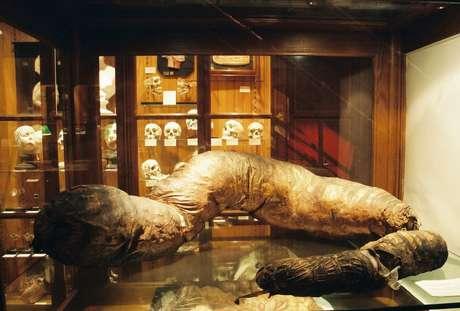 Entre as bizarrices encontradas no Mutter Museum estão crânios, dentes e até mesmo um intestino gigante