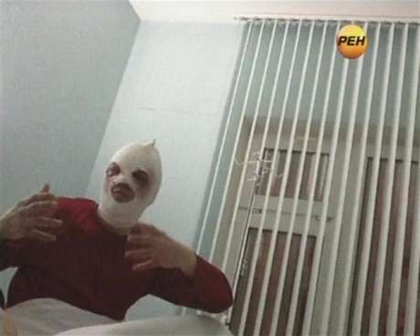 Sergei Filin, artistic director of Russia's prestigious Bolshoi Ballet, gestures during an interview in a still image from footage shot by REN TV in a Moscow hospital January 18, 2013.