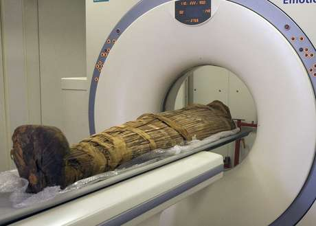 Pesquisadores fizeram exame de ressonância magnética em mais de 100 múmias de até 4 mil anos