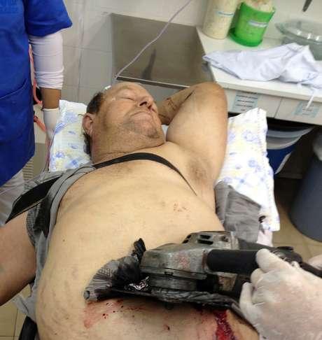 Homem fica com serra presa na barriga após se ferir durante corte de madeira