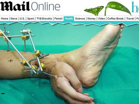 <p>Na China, médicos implantaram a mão de um paciente na perna para reimplantá-la no local certo um mês depois.</p>