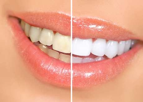 <p>Os dentes escurecem ao passar dos anos e um clareamento dura de um a três anos</p>