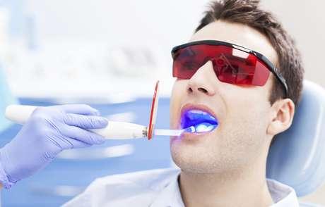 El blanqueamiento dental e uno de los procedimientos más reclamados en los consultorios.