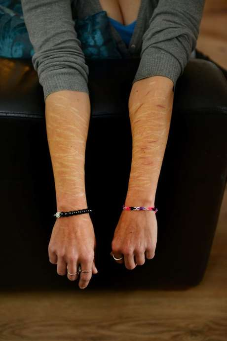 A britânica mostra as cicatrizes feitas pelo ex-namorado Foto: The Mirror / Reprodução