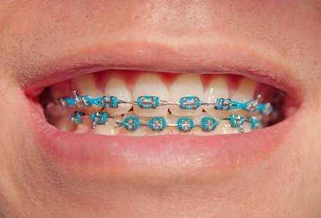 O papel das borrachinhas é segurar o arco ortodôntico aos braquetes, que são aqueles pequenos quadradinhos colados em cada dente