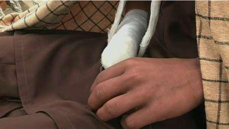 'Por que teria dor cortando uma mão que foi levantada contra o santo profeta?', questionou o garoto
