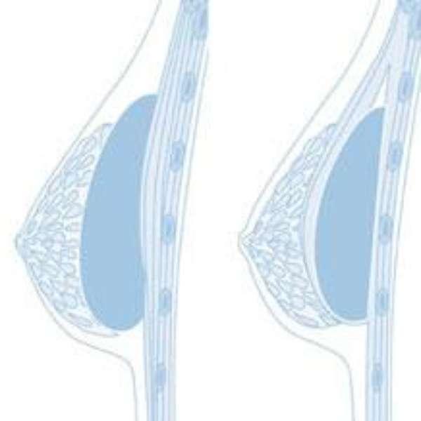Las prótesis de silicio del pecho la dimensión con