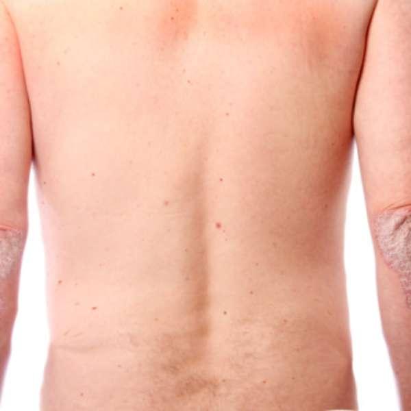 Como quitar la agudización de la psoriasis