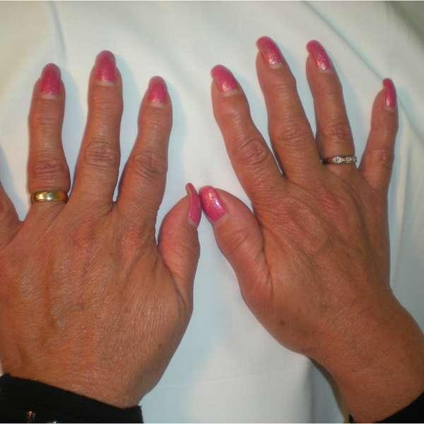 medicamentos biologicos artritis