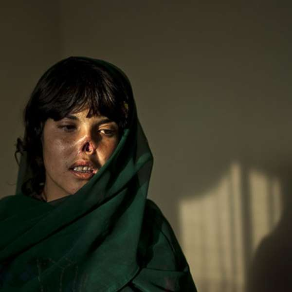 Bibi Aisha, The Girl Whose Nose The Taliban Removed