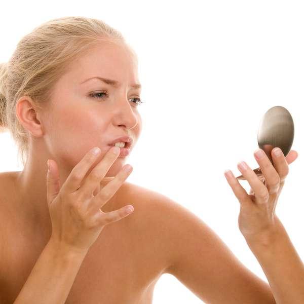 Cinco remedios caseros para acabar con las molestas aftas - Acabar con las polillas ...