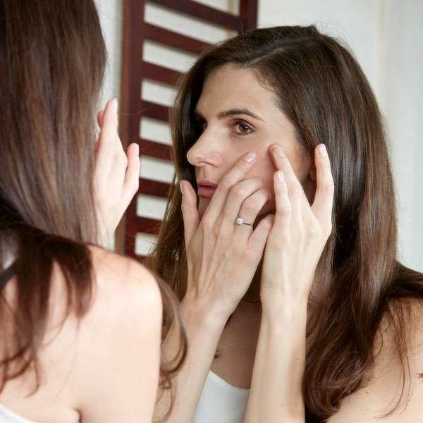 La lucha por el acné