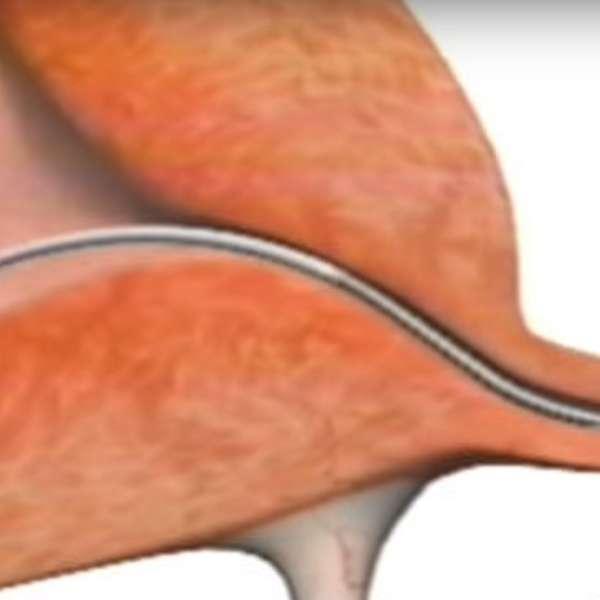 Efectos secundarios de los supositorios vaginales