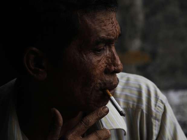 Crearon el tratamiento auxiliar Anti-Sic, a base de laminillas de ácoro, para reducir el consumo del cigarro. Foto: Archivo / AP