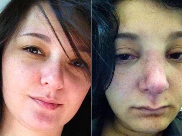 Adriana Tamashiro ficou com o rosto cheio de hematomas após a agressão Foto: Divulgação