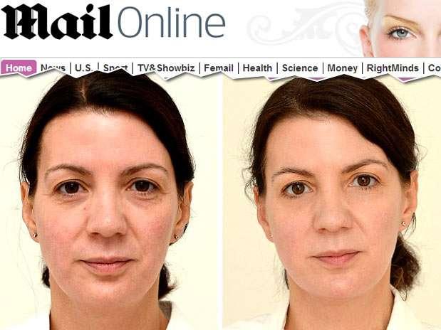 Após um mês, as manchas no rosto sumiram e ela perdeu 1 kg Foto: Reprodução