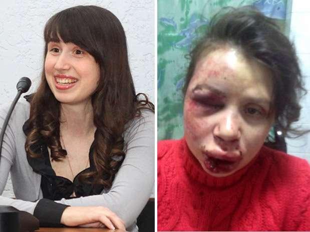 Rosto de Tetyana Chernovil ficou desconfigurado após agressão Foto: Twitter / Reprodução