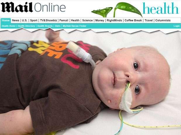 http://p2.trrsf.com/image/fget/cf/67/51/images.terra.com/2013/06/17/bebe-sindrome-rara-reproducao-mailonline-619x464.jpg