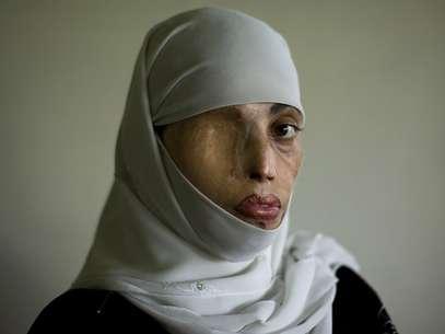 En algunos países de Medio Oriente se arroja ácido sobre las mujeres que consideran han cometido un crimen de honor.  Foto: AFP