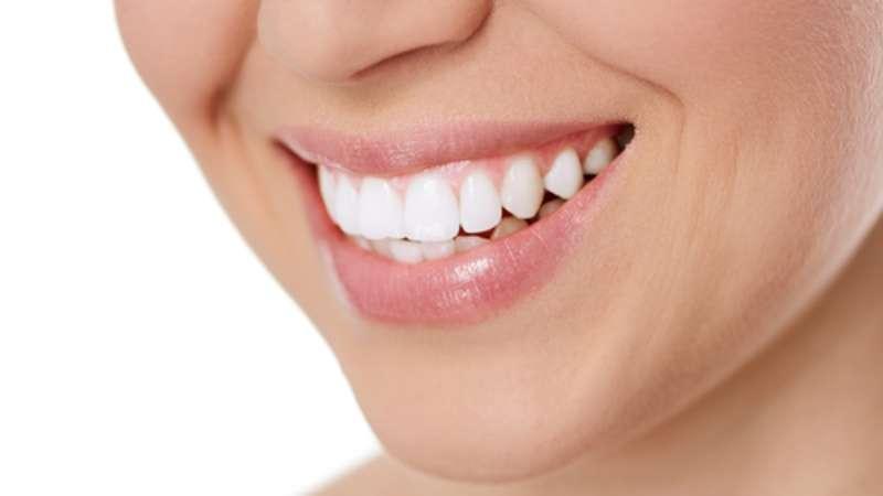 Saiba Se A Agua Oxigenada Funciona Como Clareador De Dentes