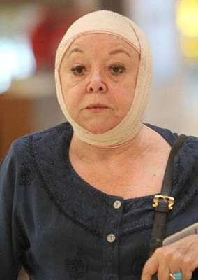 María Navarro, con la cabeza completamente vendada. - 3dfb3cmarianavarro111g