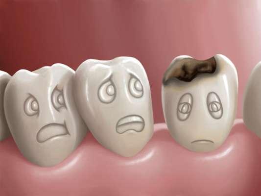 Não é de hoje que a cárie está na mira dos dentistas e até do Ministério da Saúde. Depois de ver os resultados de uma pesquisa, os holofotes foram virados para a saúde bucal. O estudo revelou que um terço da população nunca havia feito tratamento dentário e que 20% já tinha perdido todos os dentes