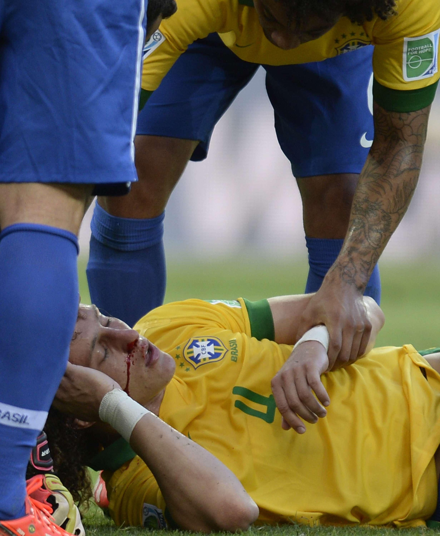 D. Luiz tem nariz reconstruído após fratura na Copa das ...