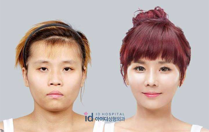ID Plastic Surgery Hospital Korea/Facebook