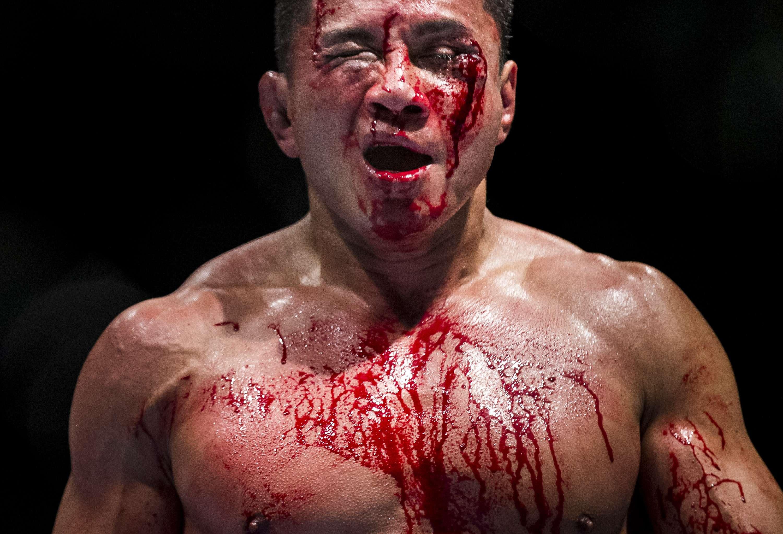 Le quedó irreconocible. Foto: Getty Images