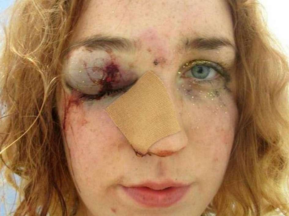 Britânica ferida faz selfie após apanhar de homem em festa
