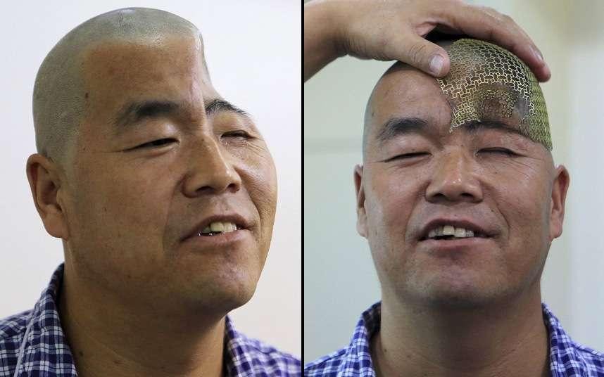 Reconstruyen cráneo de hombre con impresora 3D