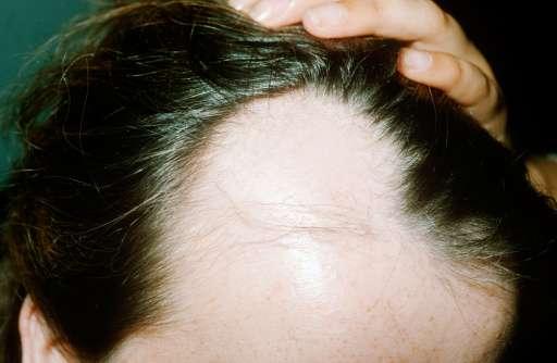 Moderna técnica de injerto capilar pone fin a la calvicie