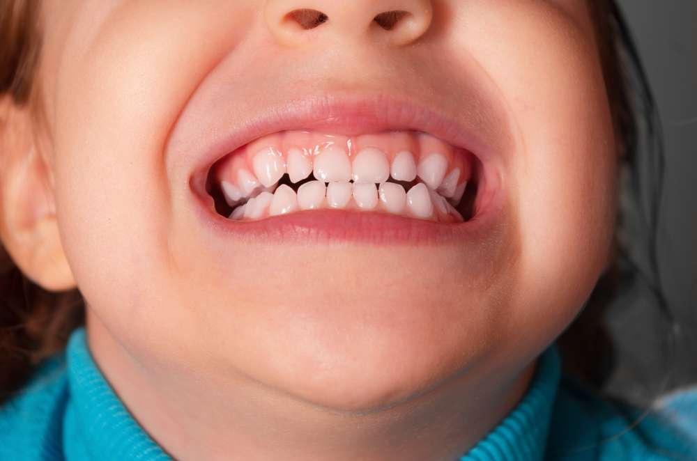 Embora seja uma doença mais comum em adultos, o bruxismo pode ser observado em crianças a partir de um ano de idade Foto: Shell114/Shutterstock