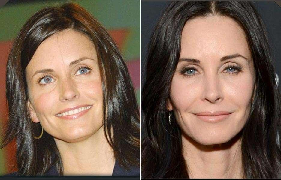 Veja o antes e depois de famosas que já usaram botox. Foto: Getty Images