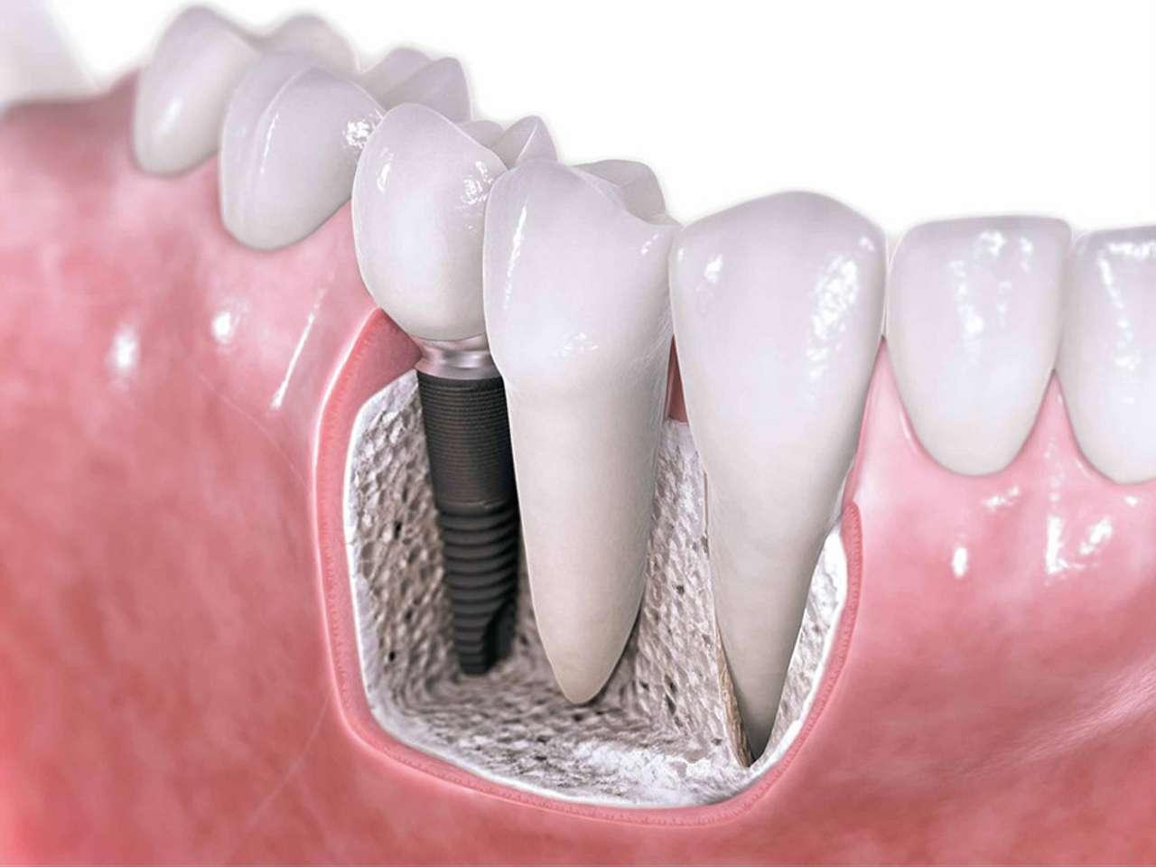 Implantes dentales de la UABC Foto: Agencia ID