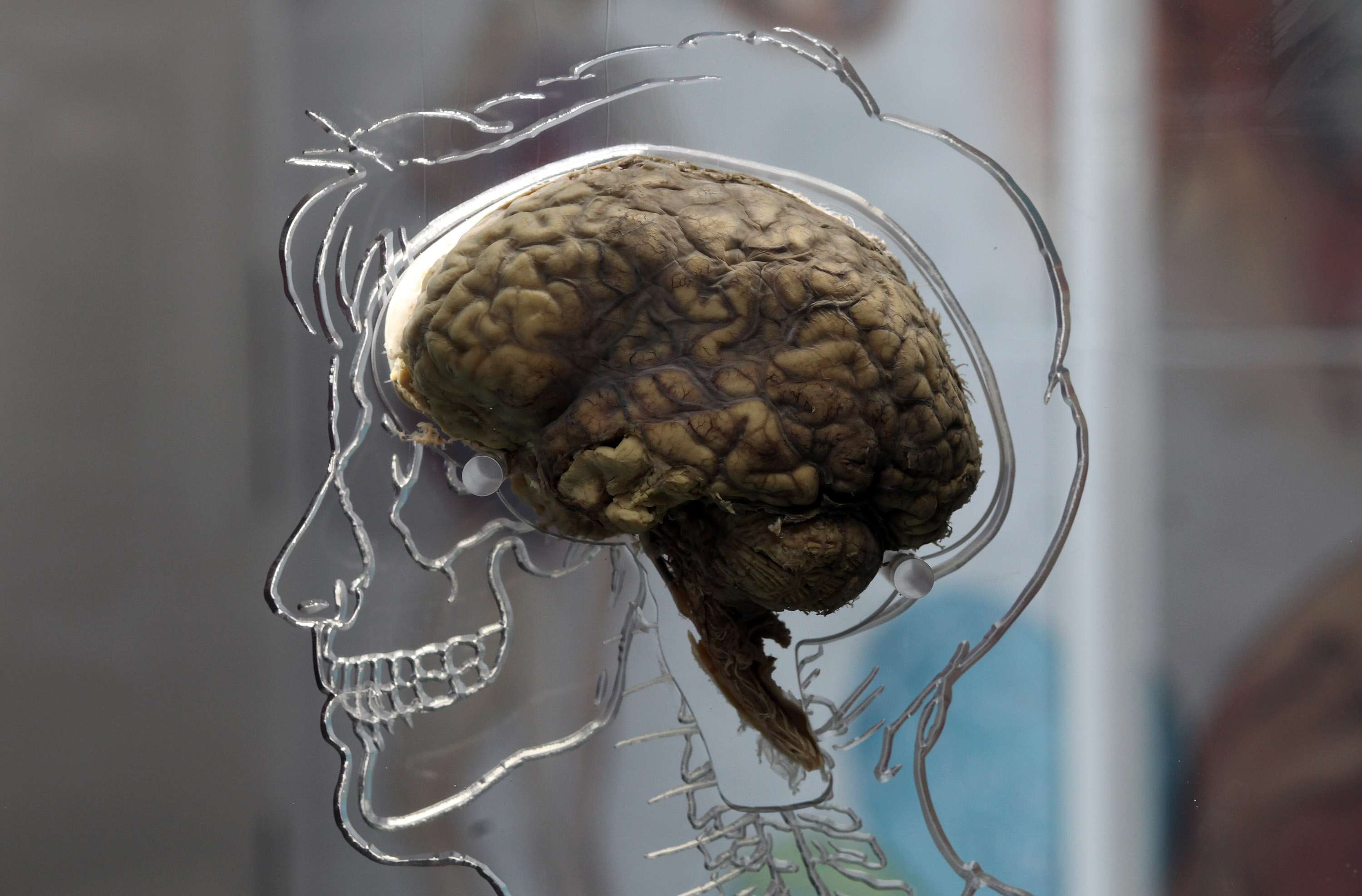 Cerebro humano. Foto: Getty Images