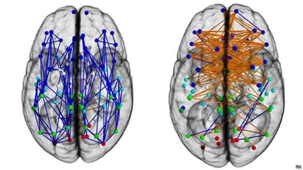 Así se ven las conexiones cerebrales de hombres (izquierda) y mujeres (derecha), según un estudio de la Universidad de Pensilvania. Foto: BBCMundo.com