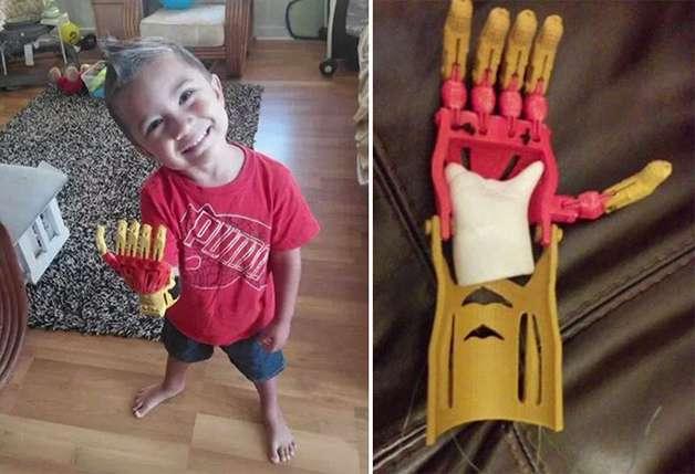 Projeto colaborativo disponibiliza modelos de próteses infantis de baixo custo inspiradas em super-heróis. Foto: Reprodução