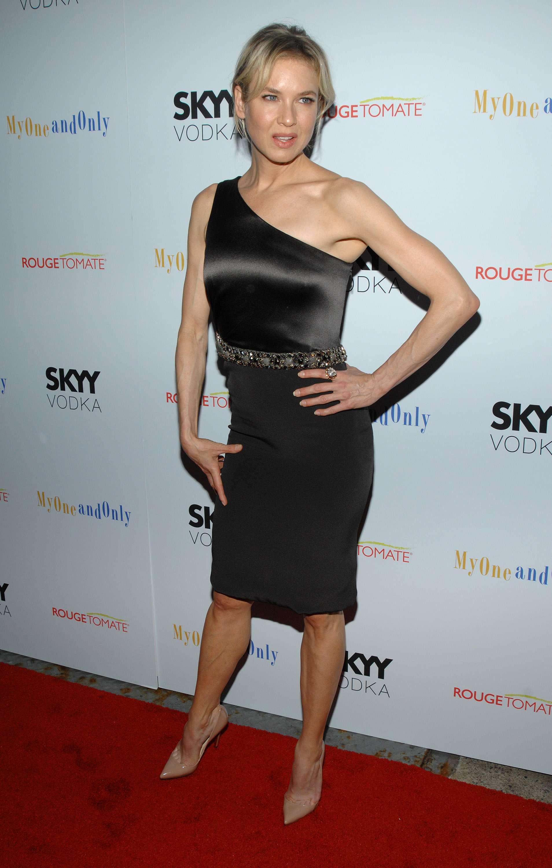 Renée Zellweger ha sucumbido a la cirugía estética en los últimos años. La actriz luce un aspecto totalmente distinto al que tenía cuando saltó a la fama por Bridget Jones. Foto: Gtres