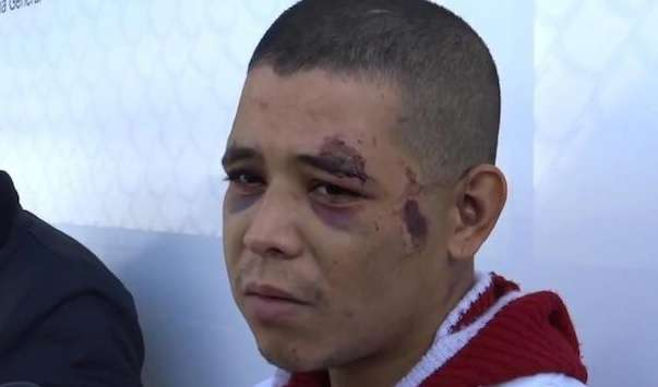Reyes procurou a polícia no dia seguinte ao crime, supostamente arrependido, e ferido pelo padrasto Foto: Twitter
