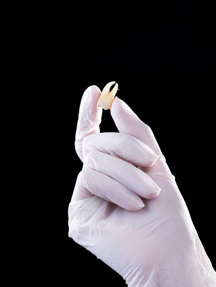 O estudo e a utilização de células-tronco provenientes da polpa do dente de leite podem melhorar a qualidade de vida de muitas pessoas que sofrem de doenças degenerativas como o Alzheimer e o Parkinson Foto: Sergii Chepulskyi /Shutterstock