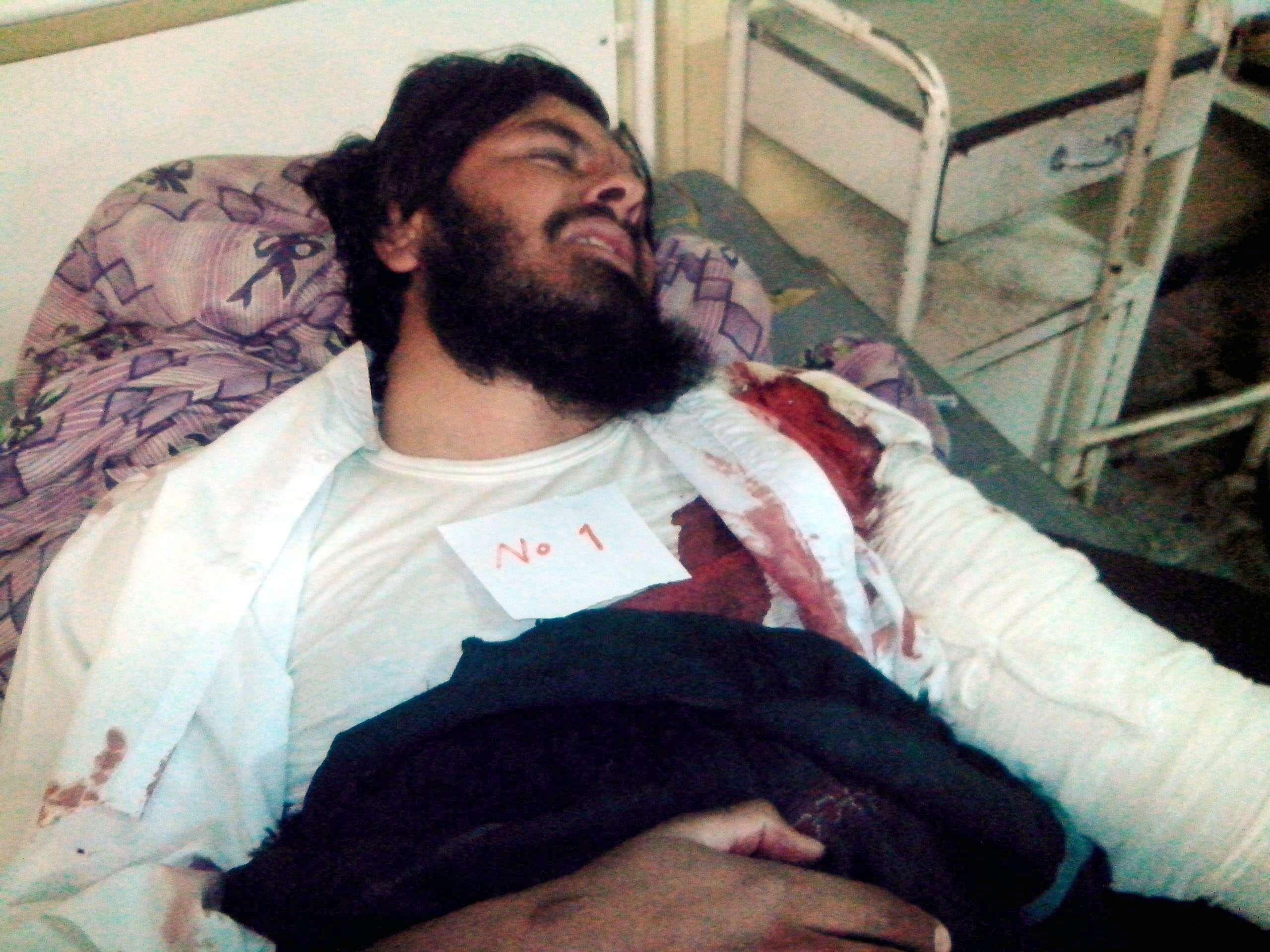 Un hombre herido en el ataque suicida recibe atención médica en un hospital de Paktika, Afganistán. Foto: EFE en español