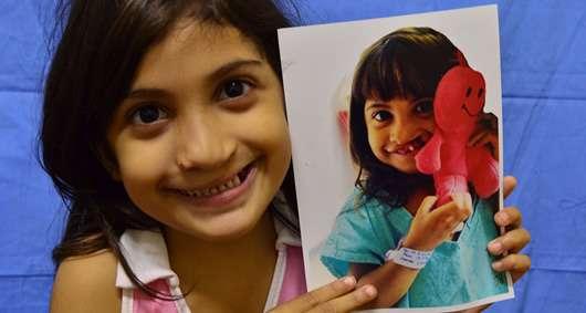 O projeto Operação Sorriso opera gratuitamente em diversas regiões do Brasil crianças e adultos com fissura labiopalatina Foto: Operação Sorriso/Divulgação