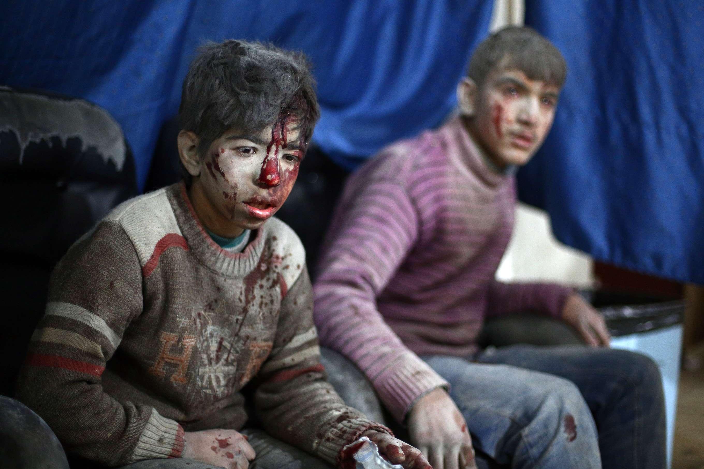 Niños sirios esperan a ser tratados en una clínica improvisada en la ciudad rebelde de Douma, luego de un ataque aéreo, a 13 kilómetros al noreste de Damasco. Foto: AFP en español